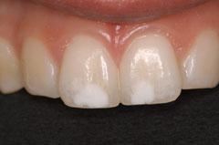 la consultation du sourire techniques le blanchiment des dents. Black Bedroom Furniture Sets. Home Design Ideas